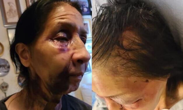 สาวผิวดำ Yasmine Beasley ถูกจับกุมในข้อหาทำร้ายหญิงวัย 70 ปีชาวเม็กซิกันได้รับบาดเจ็บสาหัสและการโจมตีทางเชื้อชาตินึกไปว่าเป็นคนเอเซียบนรถเมล์ใน Eagle Rock